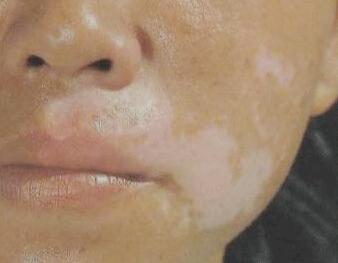 武汉白斑医院分析白癜风发病的具体因素有哪些