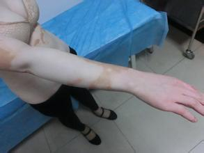 武汉环亚医院的评论白癜风传染吗