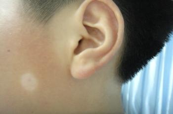 武汉白癜风治疗用什么方法好