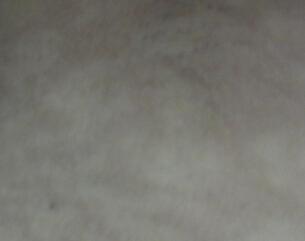 武汉治疗皮肤白癜风最好医院?为什么白癜风会久治不愈?