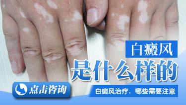 武汉早期白癜风患发会有哪些症状