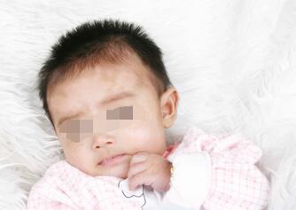 武汉儿童白癜风症状是什么样的