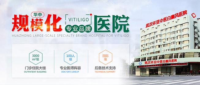武汉环亚中医白癜风医院在线咨询